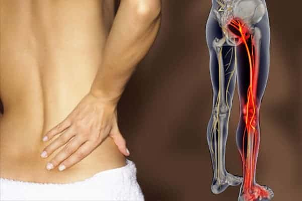 Sciatica: Osteopathic Natural Health