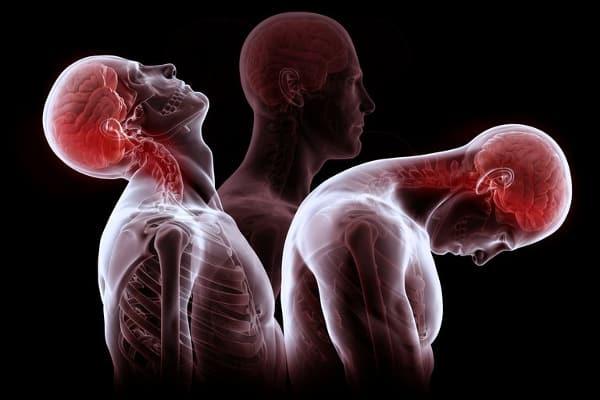 Whiplash: Osteopathic Natural Health