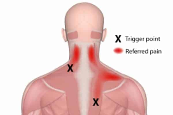 Trigger Point: Osteopathic Natural Health